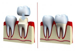 medref_370x250_dental_crown