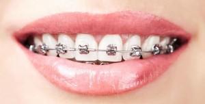 ponuda-dana-aparatic-zube-svi-pregledi-